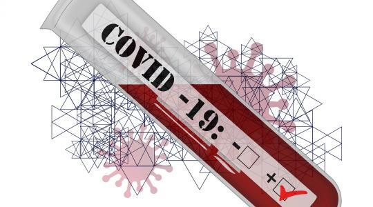 Test na covid-19 (ilustrační obrázek: fotobanka pixabay.com)